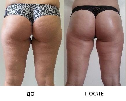 рассчитать рацион питания для похудения онлайн